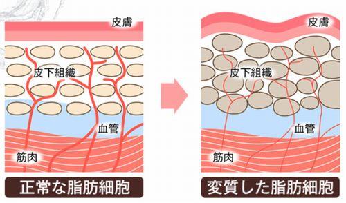 脂肪細胞の変化